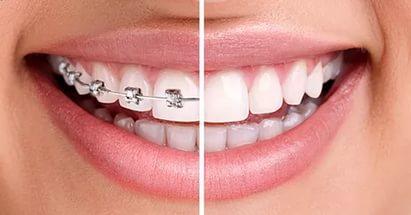 ortodont maribor