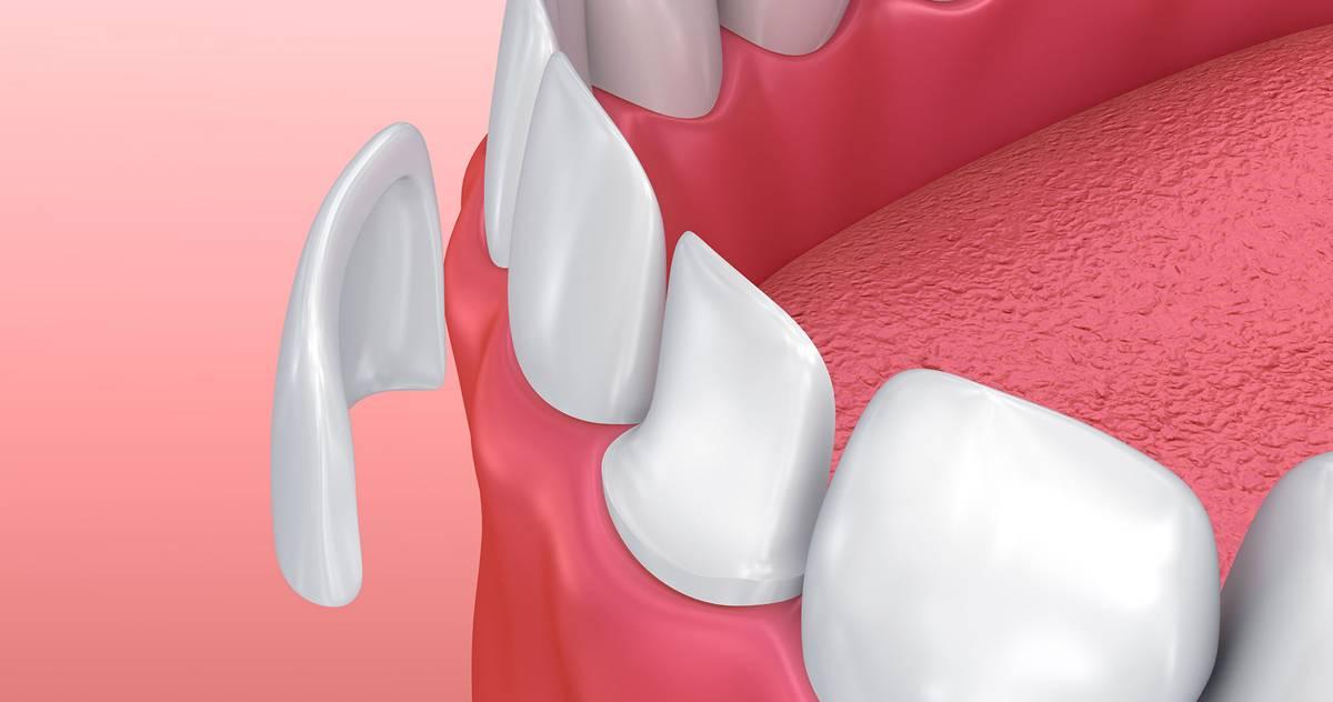 namestitev zobnih lusk