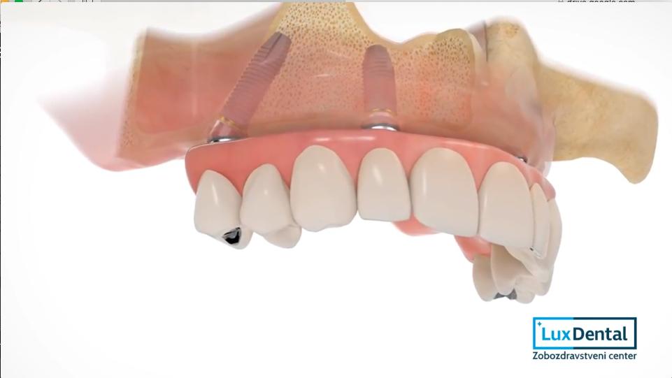 zobne prevleke