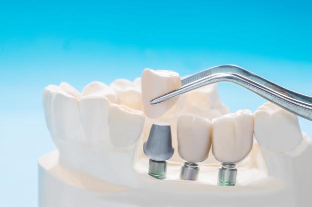 implantat1