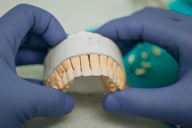 zobna protetika1