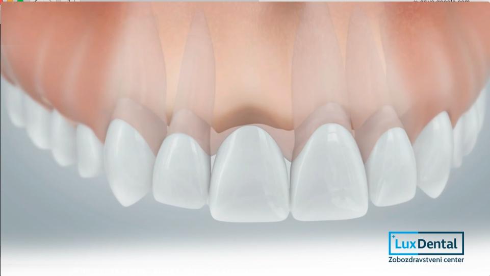 zobne luske iz porcelana