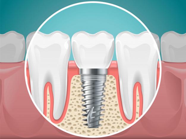 zobni vsadki1