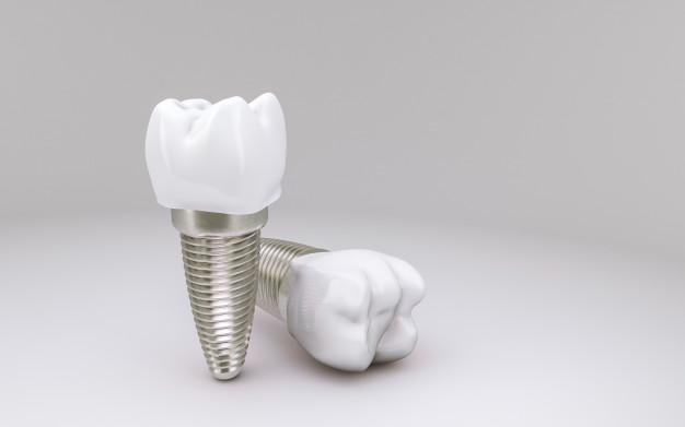 zobni vsadki2