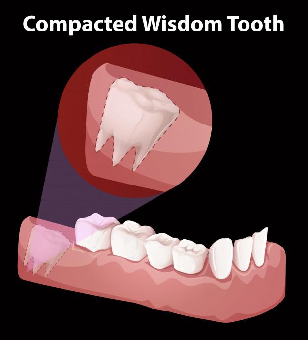 modrostni zobje1