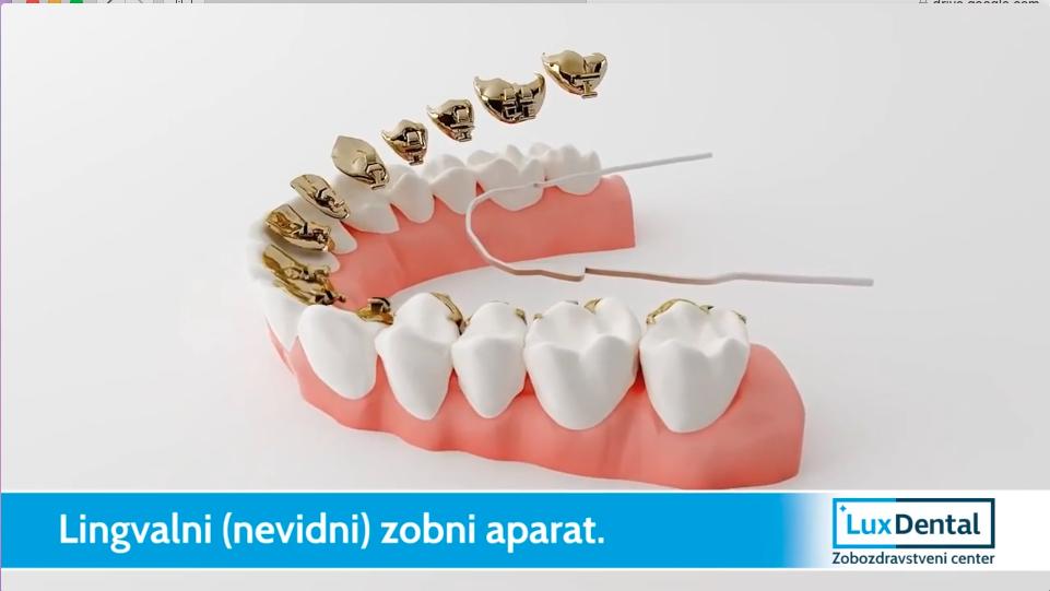 nevidni zobni aparat1
