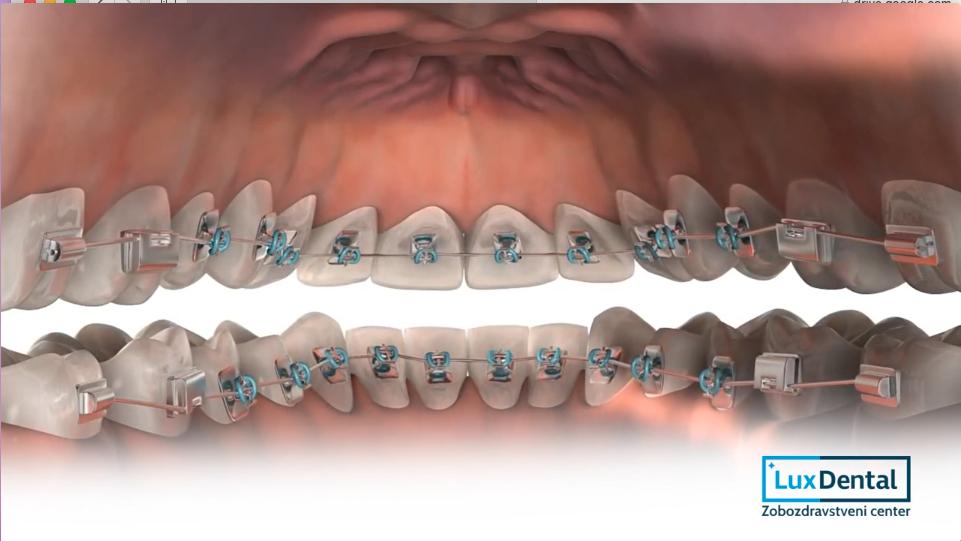 nevidni zobni aparat2