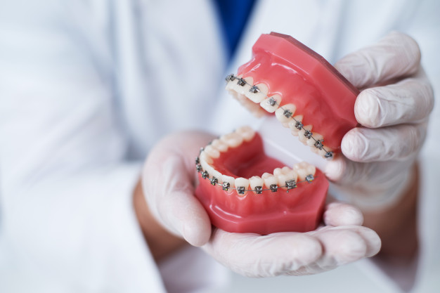 ortodontija1