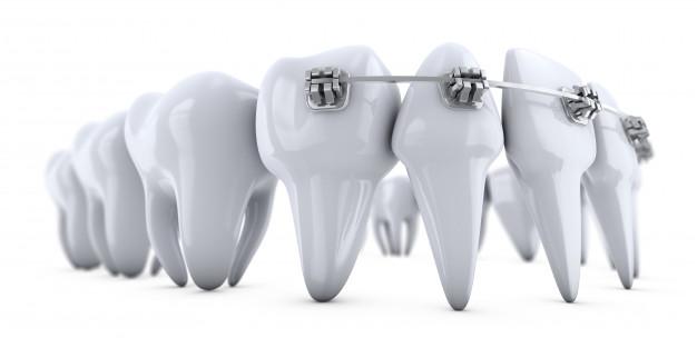 ortodontija3