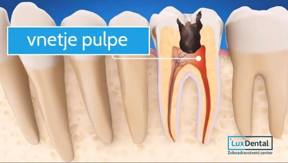 zdravljenje zoba ali puljenje zoba1