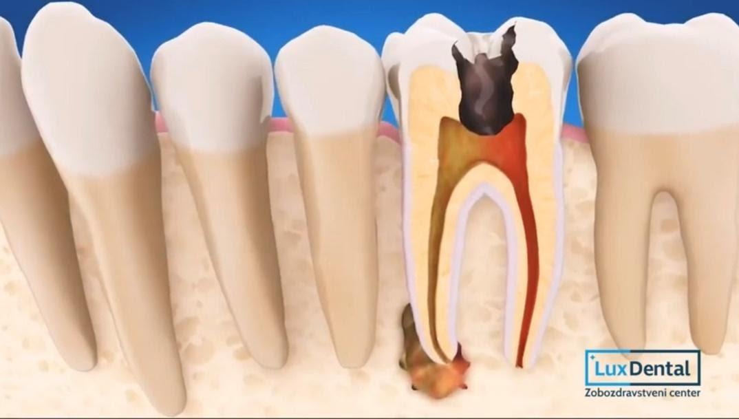 zdravljenje zoba ali puljenje zoba2