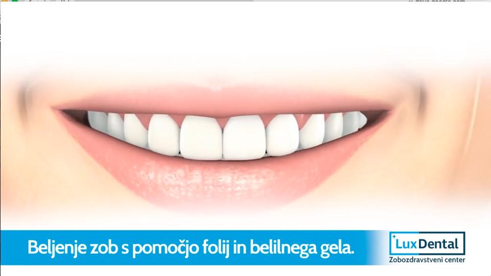 kako pobeliti zobe2