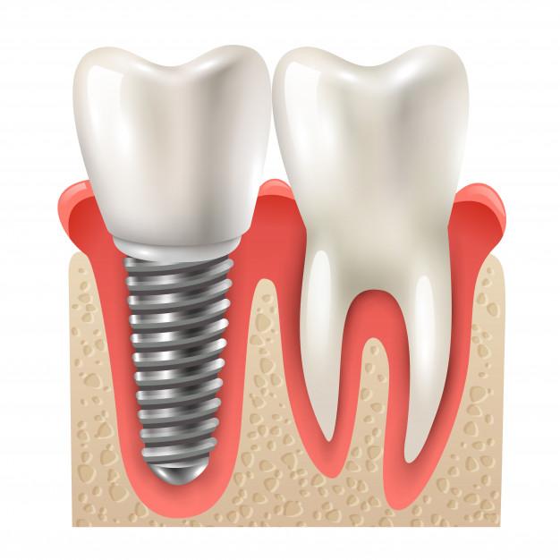 oralna kirurgija, oralni kirurg2