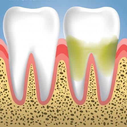 zobni kamen 2
